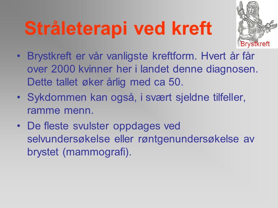Stråleterapi ved kreft Behandlingsalternativer: –Kirurgi –Strålterapi –Hormonbehandling –.. Behandlingsvalg avhenger av: –Svulstens størrelse –Spredni