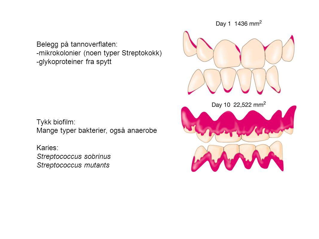 Belegg på tannoverflaten: -mikrokolonier (noen typer Streptokokk) -glykoproteiner fra spytt Tykk biofilm: Mange typer bakterier, også anaerobe Karies: