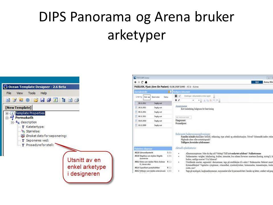 DIPS Panorama og Arena bruker arketyper
