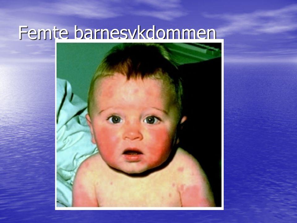 Tredagersfeber Høy feber 40 grader Høy feber 40 grader Ibland litt forkjølelse Ibland litt forkjølelse Upåvirket barn tross høy feber Upåvirket barn tross høy feber Feber forsvinner plutselig rundt 3.