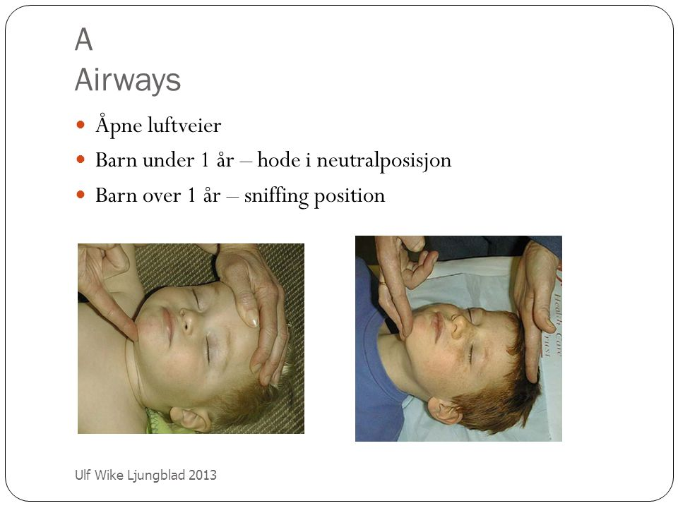 A Airways Åpne luftveier Barn under 1 år – hode i neutralposisjon Barn over 1 år – sniffing position Ulf Wike Ljungblad 2013
