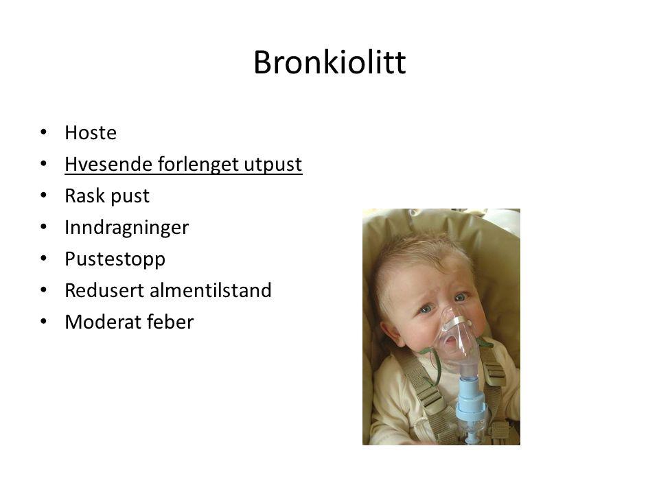 14 Snufsing Barn < 6 mndr er obligate nesepustere.
