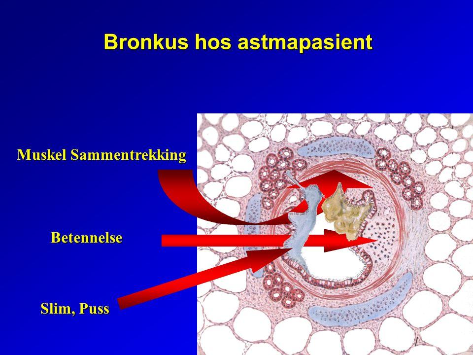 Bronkus hos astmapasient Muskel Sammentrekking Betennelse Slim, Puss