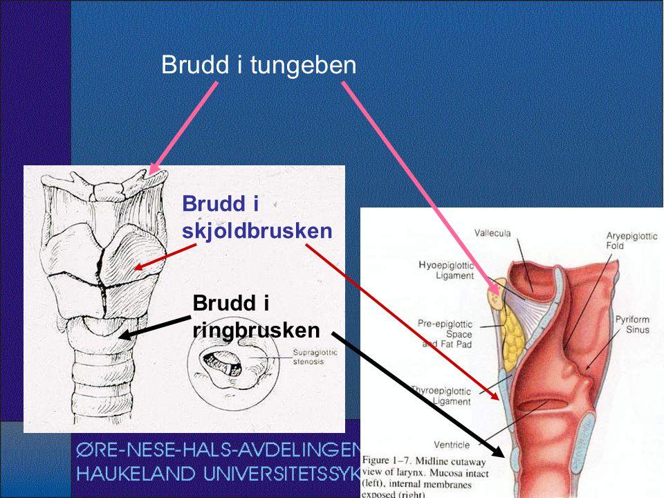 Brudd i tungeben Brudd i skjoldbrusken Brudd i ringbrusken