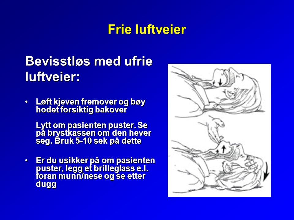 Frie luftveier Bevisstløs med ufrie luftveier: Løft kjeven fremover og bøy hodet forsiktig bakover Lytt om pasienten puster. Se på brystkassen om den