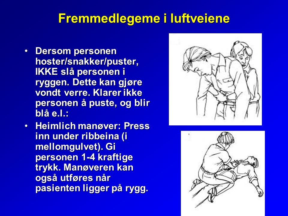 Fremmedlegeme i luftveiene Dersom personen hoster/snakker/puster, IKKE slå personen i ryggen.