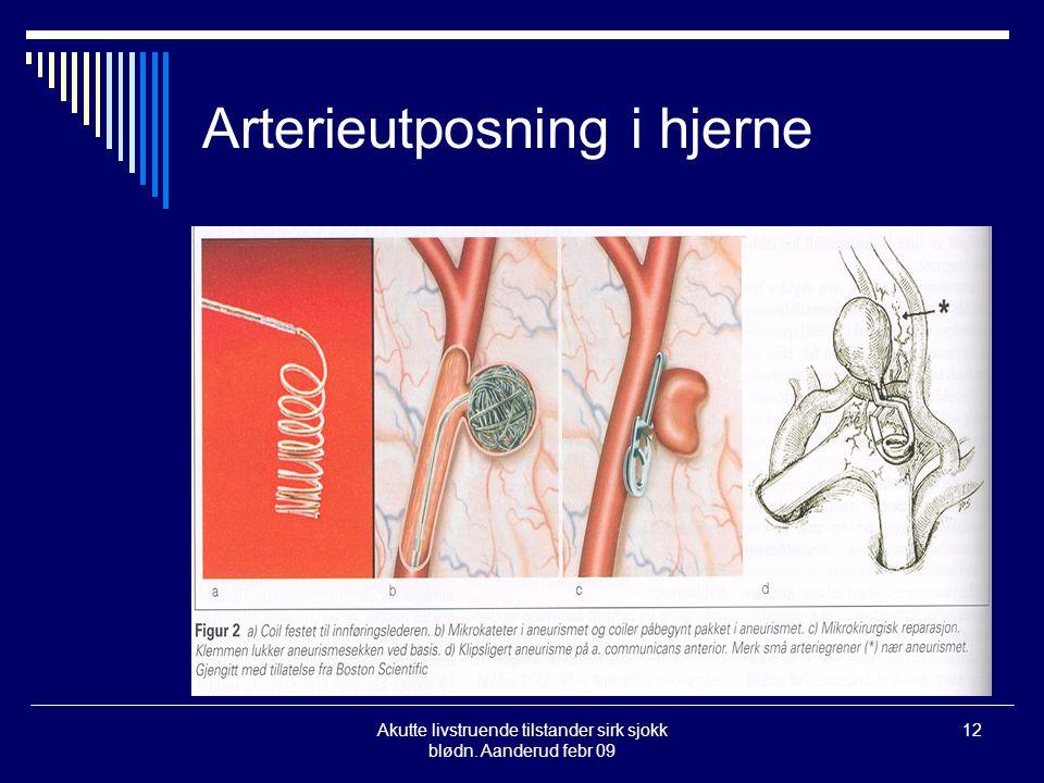 Akutte livstruende tilstander sirk sjokk blødn. Aanderud febr 09 12 Arterieutposning i hjerne