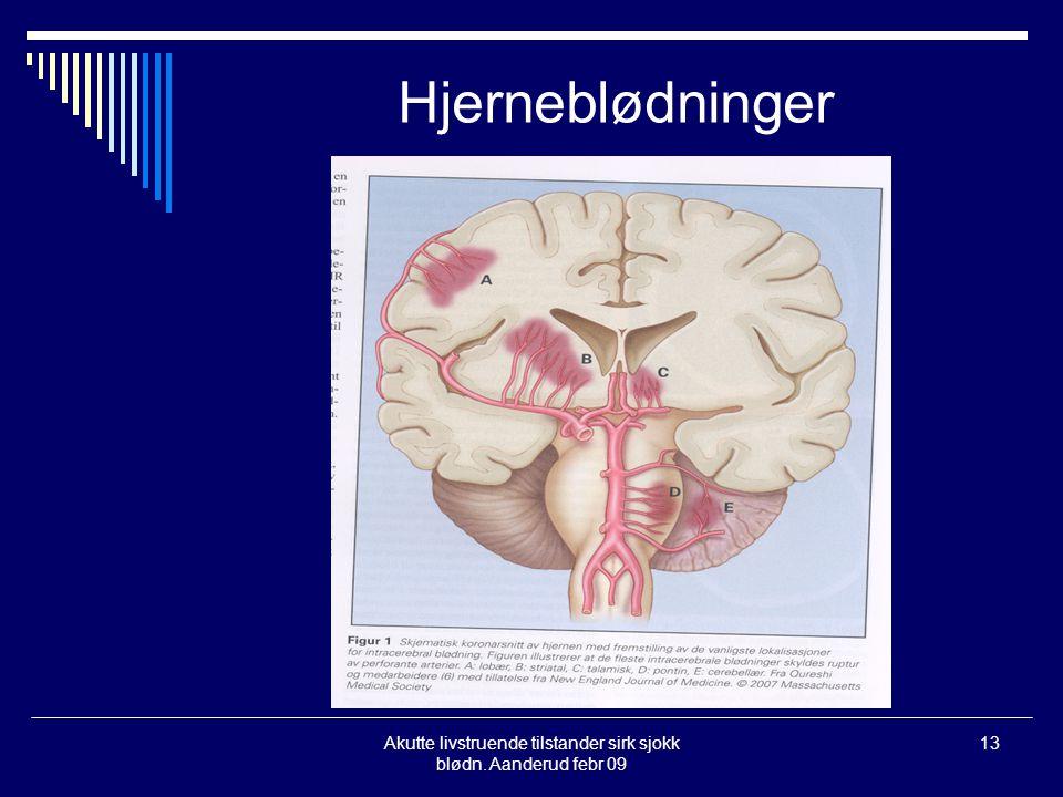 Akutte livstruende tilstander sirk sjokk blødn. Aanderud febr 09 13 Hjerneblødninger