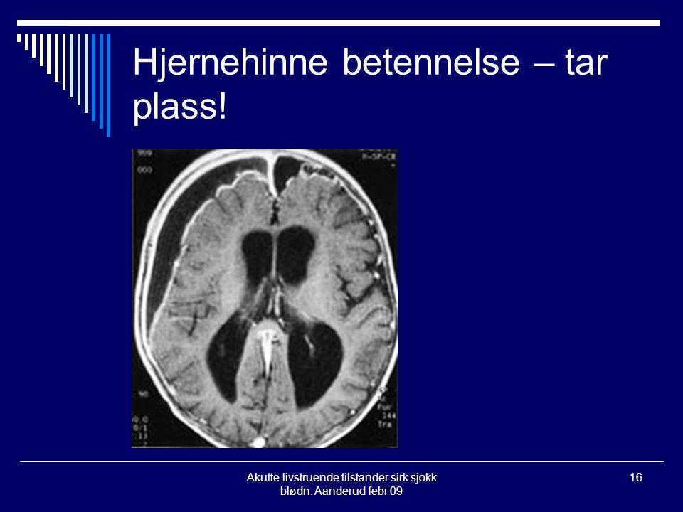 Akutte livstruende tilstander sirk sjokk blødn. Aanderud febr 09 16 Hjernehinne betennelse – tar plass!
