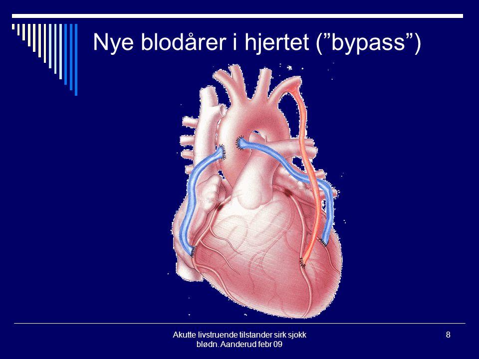 """Akutte livstruende tilstander sirk sjokk blødn. Aanderud febr 09 8 Nye blodårer i hjertet (""""bypass"""")"""