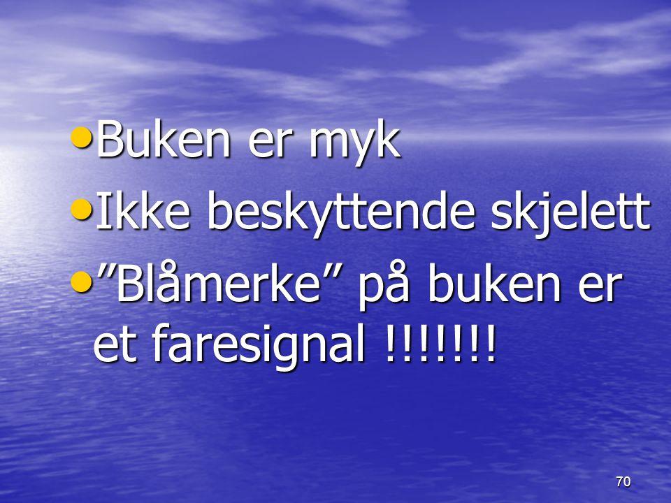 """70 Buken er myk Buken er myk Ikke beskyttende skjelett Ikke beskyttende skjelett """"Blåmerke"""" på buken er et faresignal !!!!!!! """"Blåmerke"""" på buken er e"""