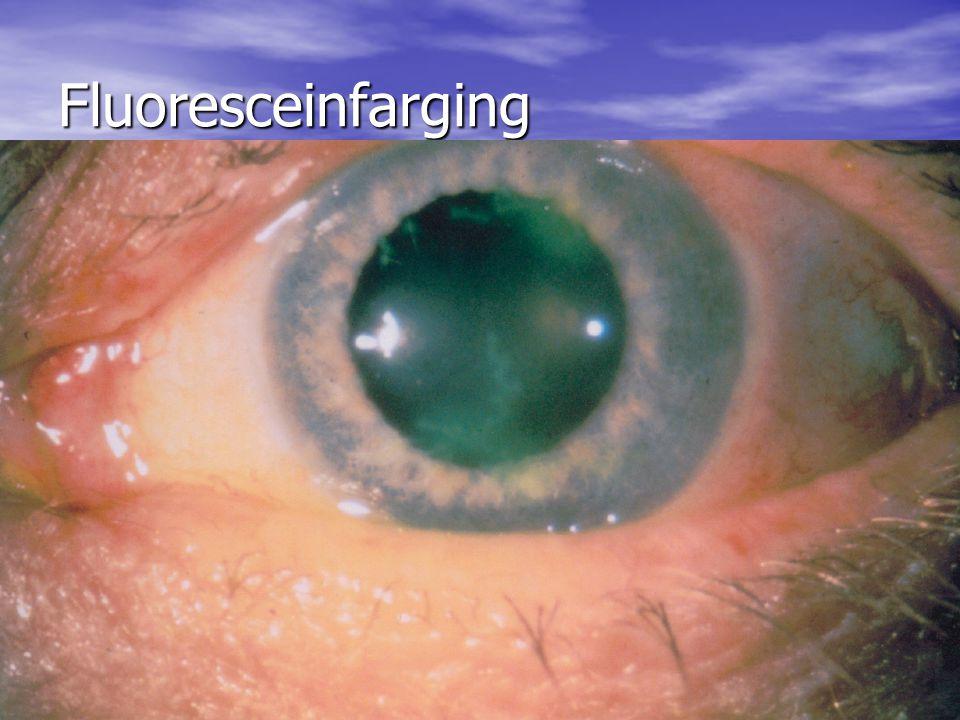 Fluoresceinfarging