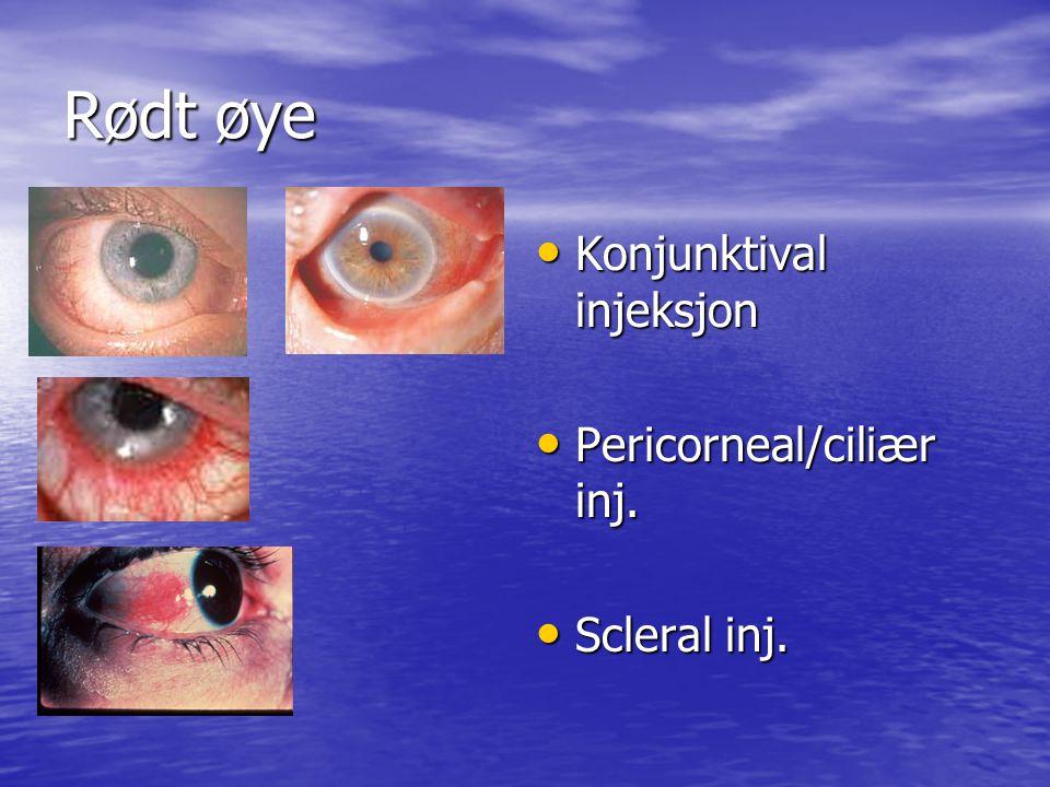 Rødt øye Konjunktival injeksjon Konjunktival injeksjon Pericorneal/ciliær inj.
