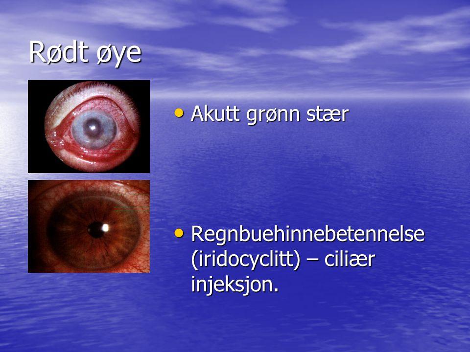 Rødt øye Akutt grønn stær Akutt grønn stær Regnbuehinnebetennelse (iridocyclitt) – ciliær injeksjon.