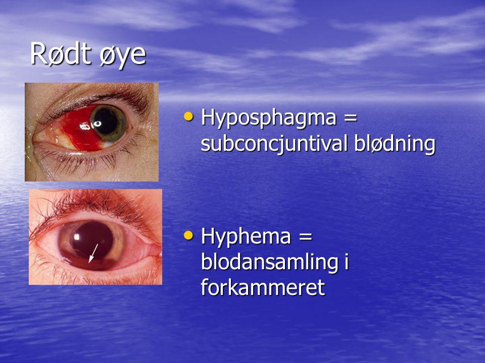 Rødt øye Hyposphagma = subconcjuntival blødning Hyposphagma = subconcjuntival blødning Hyphema = blodansamling i forkammeret Hyphema = blodansamling i forkammeret