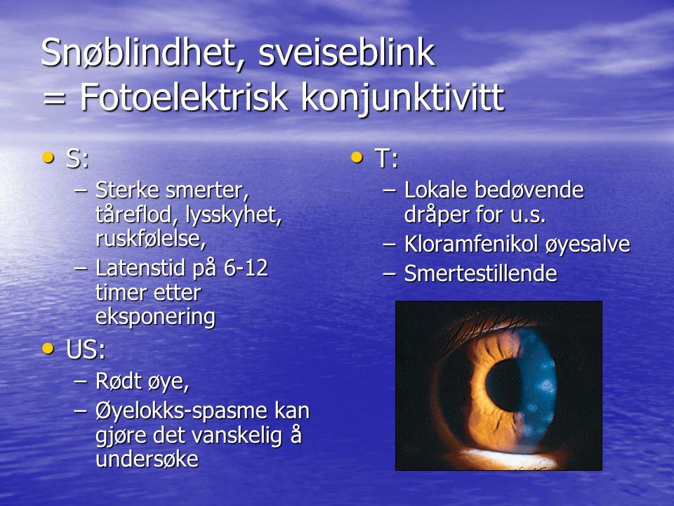 Snøblindhet, sveiseblink = Fotoelektrisk konjunktivitt S: S: –Sterke smerter, tåreflod, lysskyhet, ruskfølelse, –Latenstid på 6-12 timer etter eksponering US: US: –Rødt øye, –Øyelokks-spasme kan gjøre det vanskelig å undersøke T: T: –Lokale bedøvende dråper for u.s.