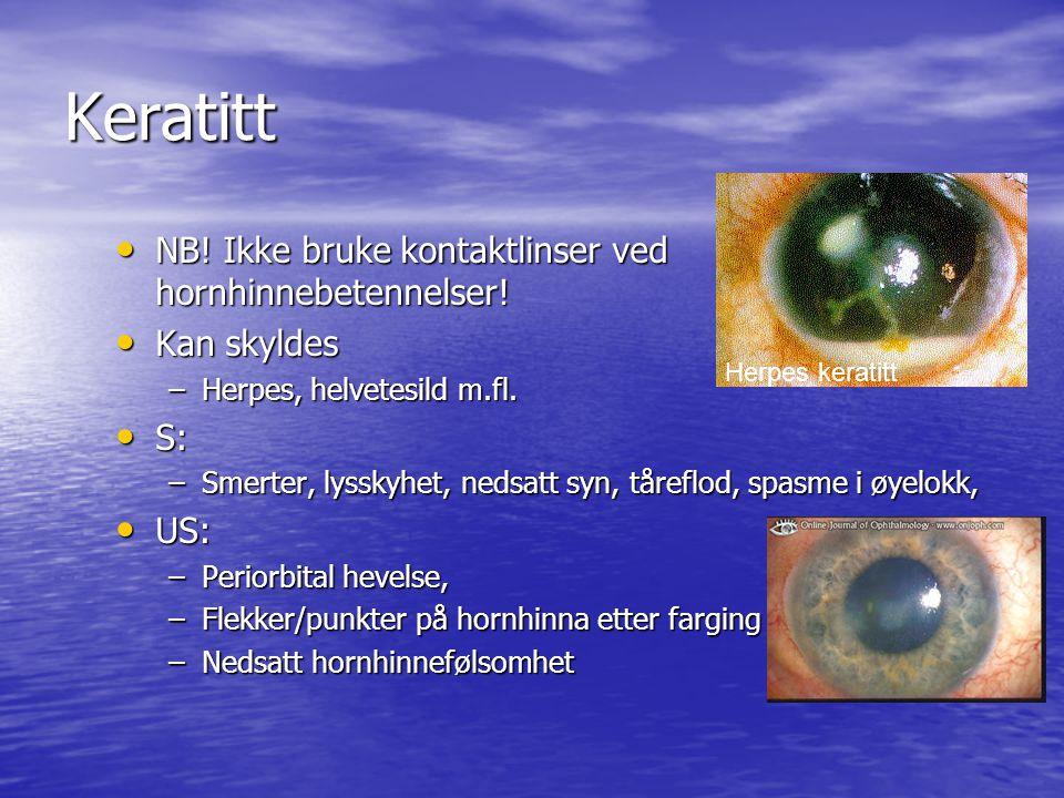 Keratitt NB.Ikke bruke kontaktlinser ved hornhinnebetennelser.