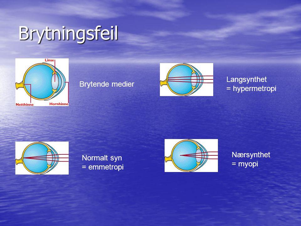 Brytningsfeil Nærsynthet = myopi Langsynthet = hypermetropi Normalt syn = emmetropi Brytende medier