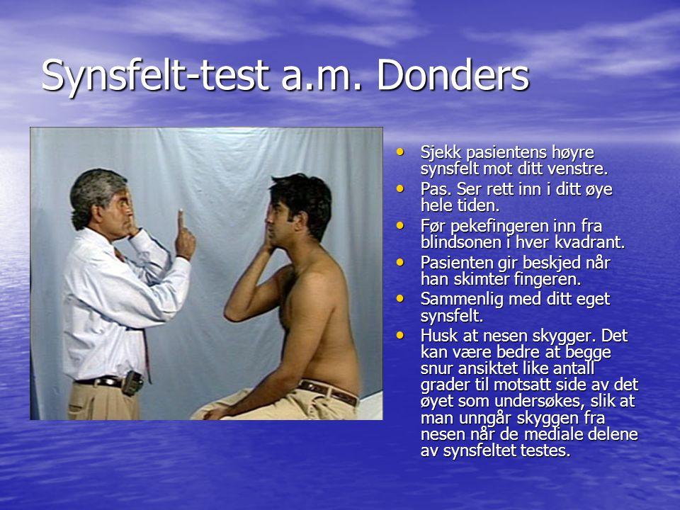 Synsfelt-test a.m.Donders Sjekk pasientens høyre synsfelt mot ditt venstre.