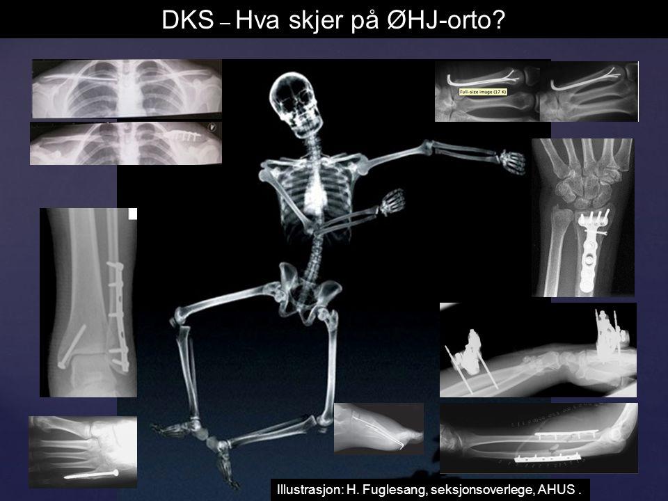 Illustrasjon: H. Fuglesang, seksjonsoverlege, AHUS. DKS – Hva skjer på ØHJ-orto?