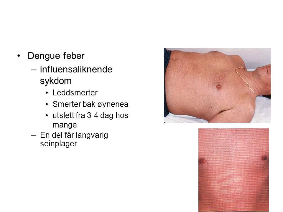 Dengue feber –influensaliknende sykdom Leddsmerter Smerter bak øynenea utslett fra 3-4 dag hos mange –En del får langvarig seinplager