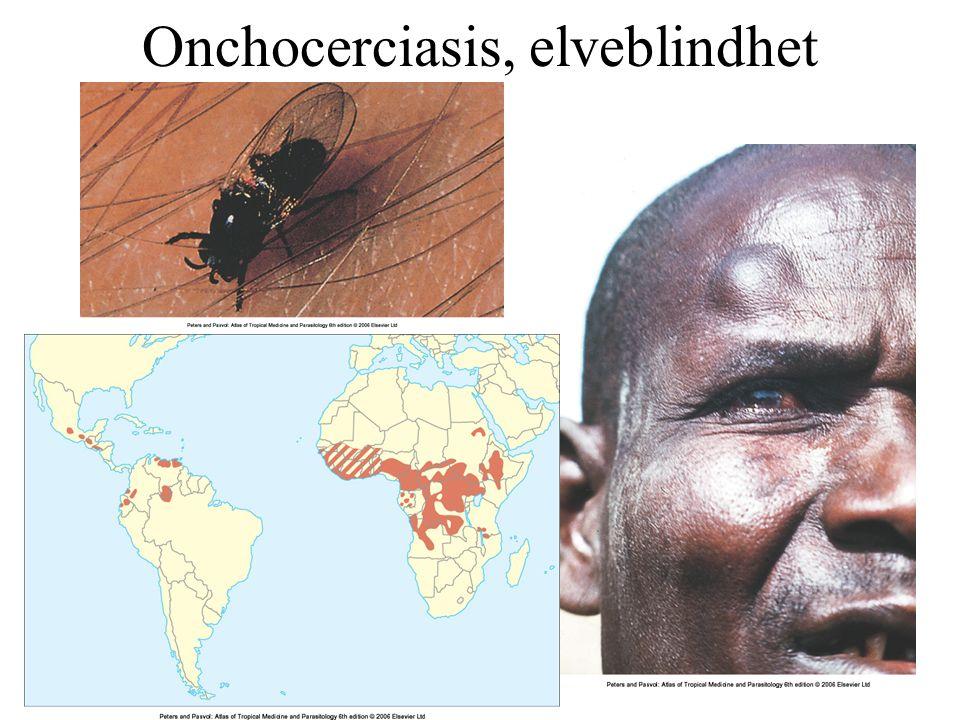Onchocerciasis, elveblindhet