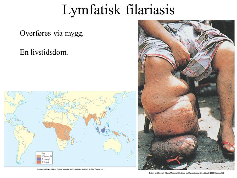 Lymfatisk filariasis Overføres via mygg. En livstidsdom.