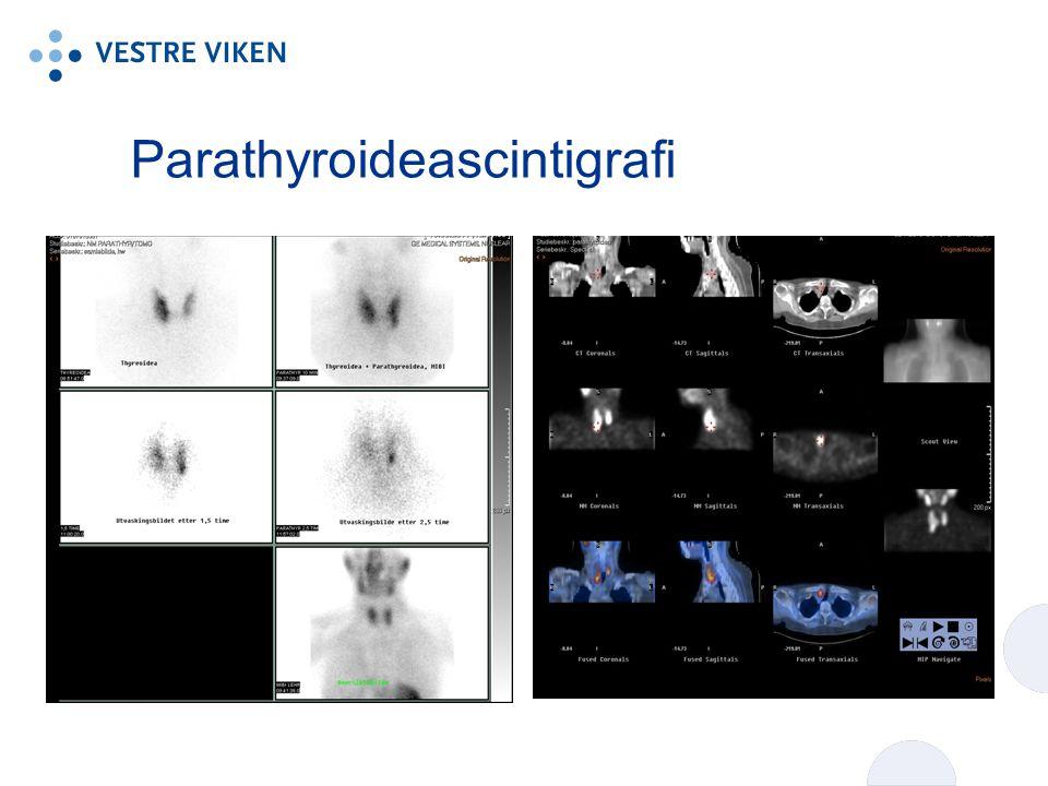 Parathyroideascintigrafi