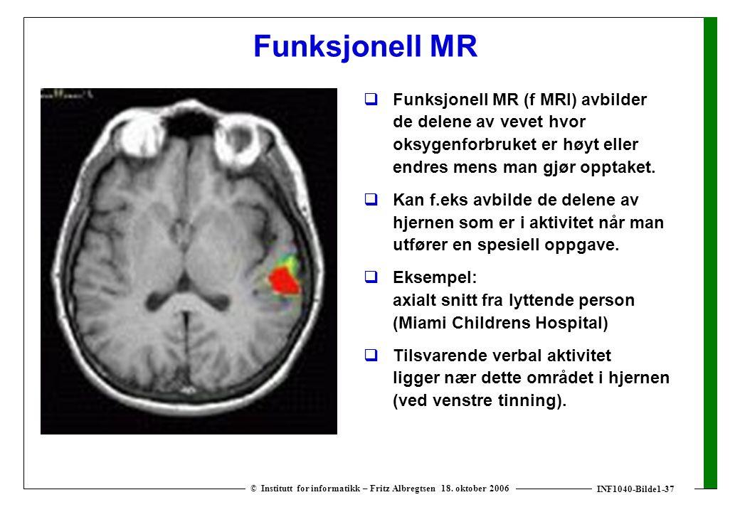 INF1040-Bilde1-37 © Institutt for informatikk – Fritz Albregtsen 18. oktober 2006 Funksjonell MR  Funksjonell MR (f MRI) avbilder de delene av vevet