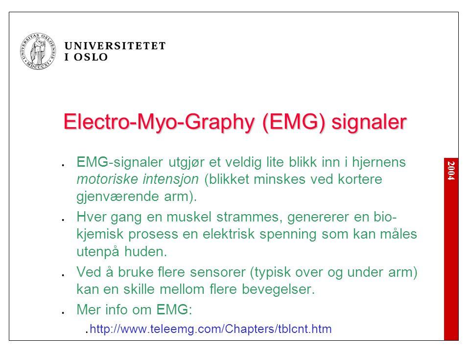 2004 Electro-Myo-Graphy (EMG) signaler EMG-signaler utgjør et veldig lite blikk inn i hjernens motoriske intensjon (blikket minskes ved kortere gjenværende arm).