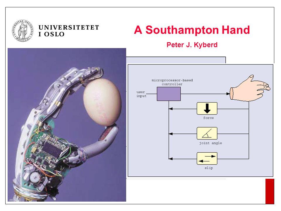 2004 A Southampton Hand Peter J. Kyberd Tradisjonell protese