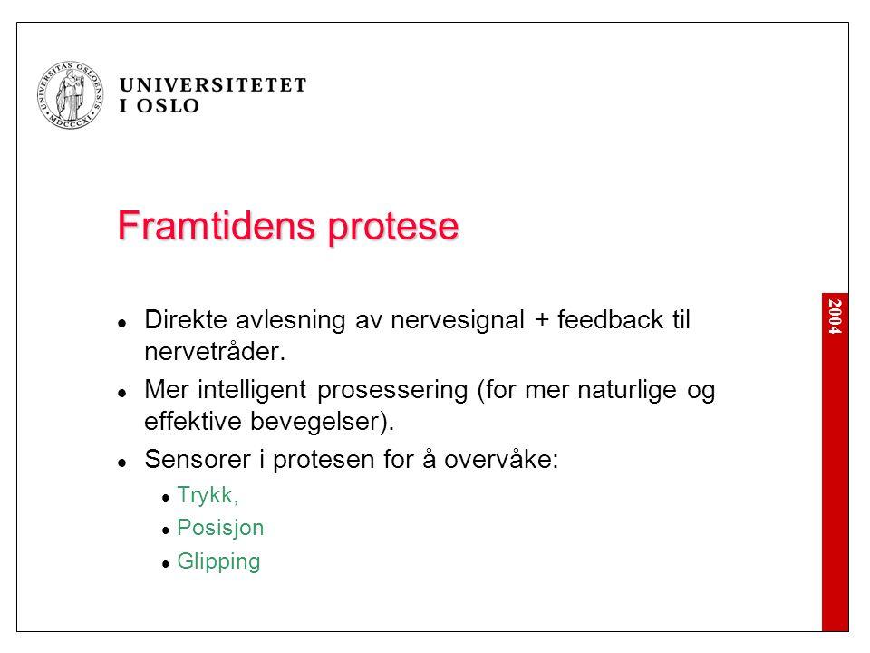 2004 Framtidens protese Direkte avlesning av nervesignal + feedback til nervetråder. Mer intelligent prosessering (for mer naturlige og effektive beve