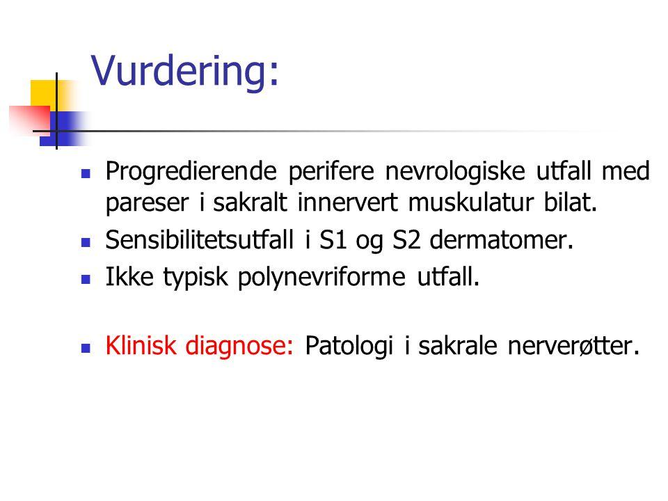 Vurdering: Progredierende perifere nevrologiske utfall med pareser i sakralt innervert muskulatur bilat. Sensibilitetsutfall i S1 og S2 dermatomer. Ik