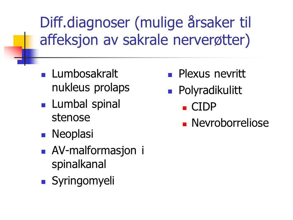 Diff.diagnoser (mulige årsaker til affeksjon av sakrale nerverøtter) Lumbosakralt nukleus prolaps Lumbal spinal stenose Neoplasi AV-malformasjon i spi
