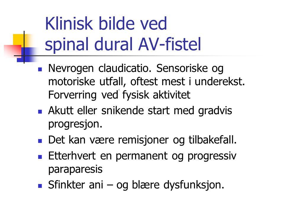 Klinisk bilde ved spinal dural AV-fistel Nevrogen claudicatio. Sensoriske og motoriske utfall, oftest mest i underekst. Forverring ved fysisk aktivite