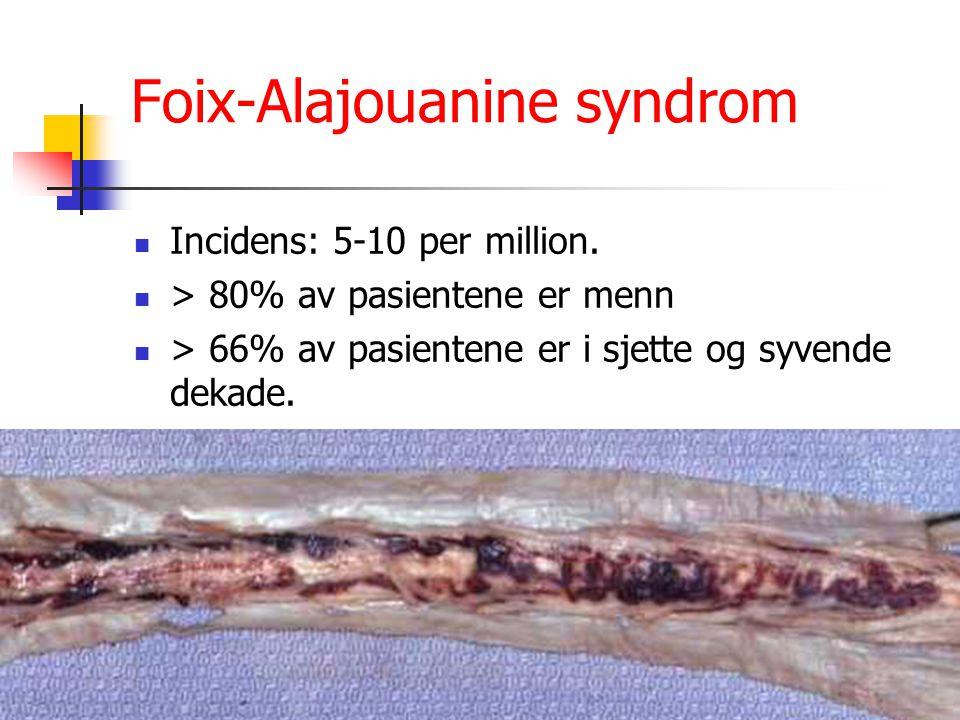 Foix-Alajouanine syndrom Incidens: 5-10 per million. > 80% av pasientene er menn > 66% av pasientene er i sjette og syvende dekade.