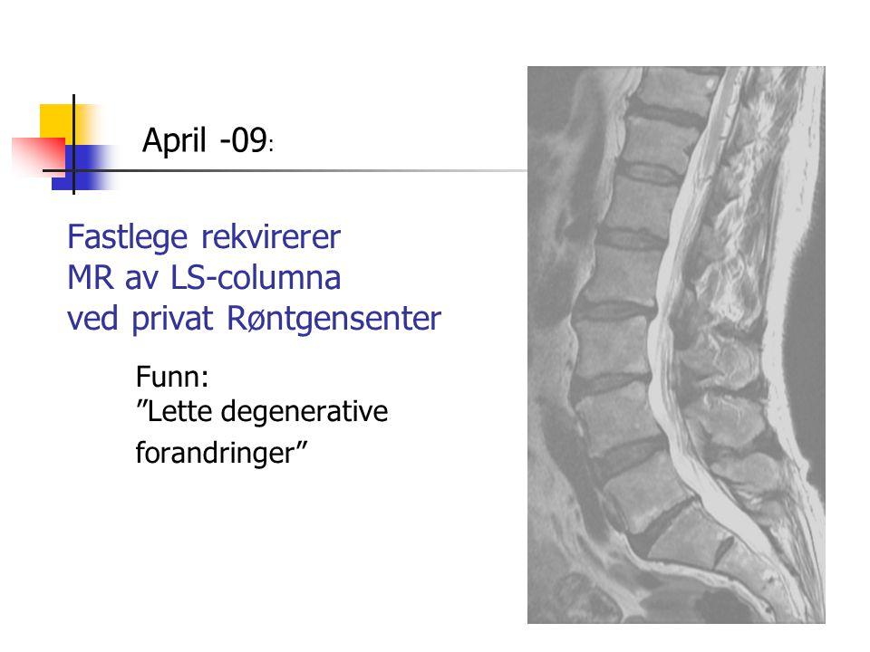 """Fastlege rekvirerer MR av LS-columna ved privat Røntgensenter Funn: """"Lette degenerative forandringer"""" April -09 :"""