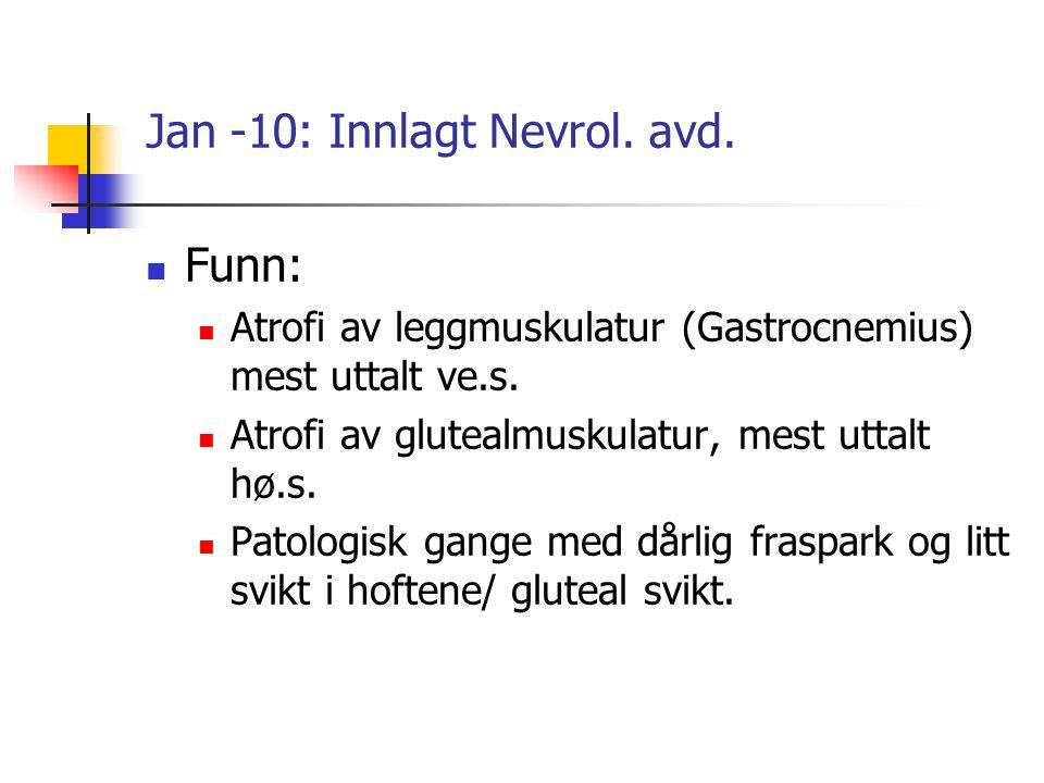 Jan -10: Innlagt Nevrol. avd. Funn: Atrofi av leggmuskulatur (Gastrocnemius) mest uttalt ve.s. Atrofi av glutealmuskulatur, mest uttalt hø.s. Patologi