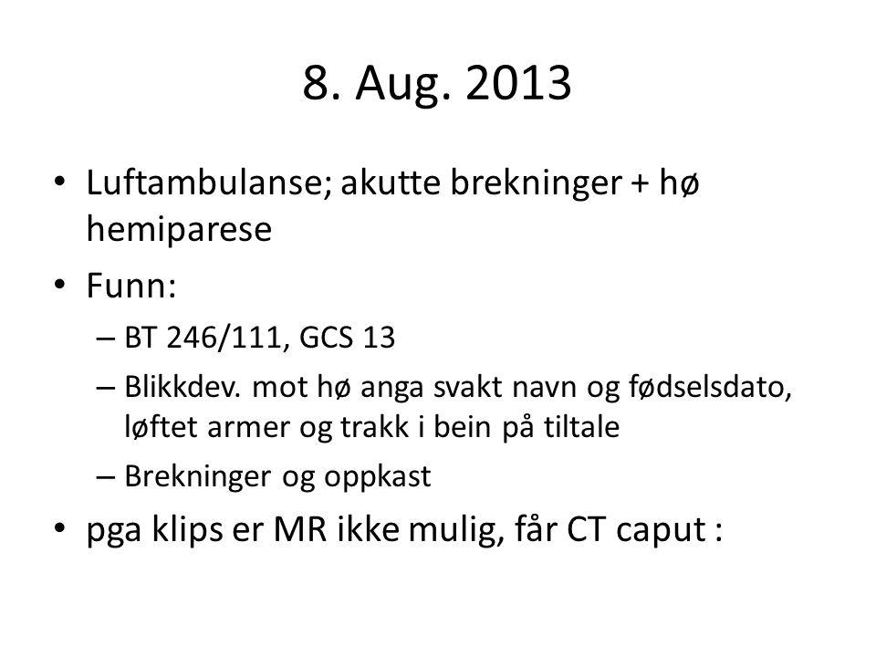 8. Aug. 2013 Luftambulanse; akutte brekninger + hø hemiparese Funn: – BT 246/111, GCS 13 – Blikkdev. mot hø anga svakt navn og fødselsdato, løftet arm