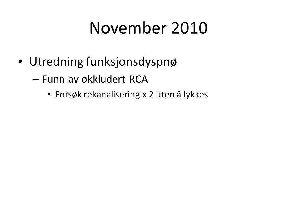November 2010 Utredning funksjonsdyspnø – Funn av okkludert RCA Forsøk rekanalisering x 2 uten å lykkes