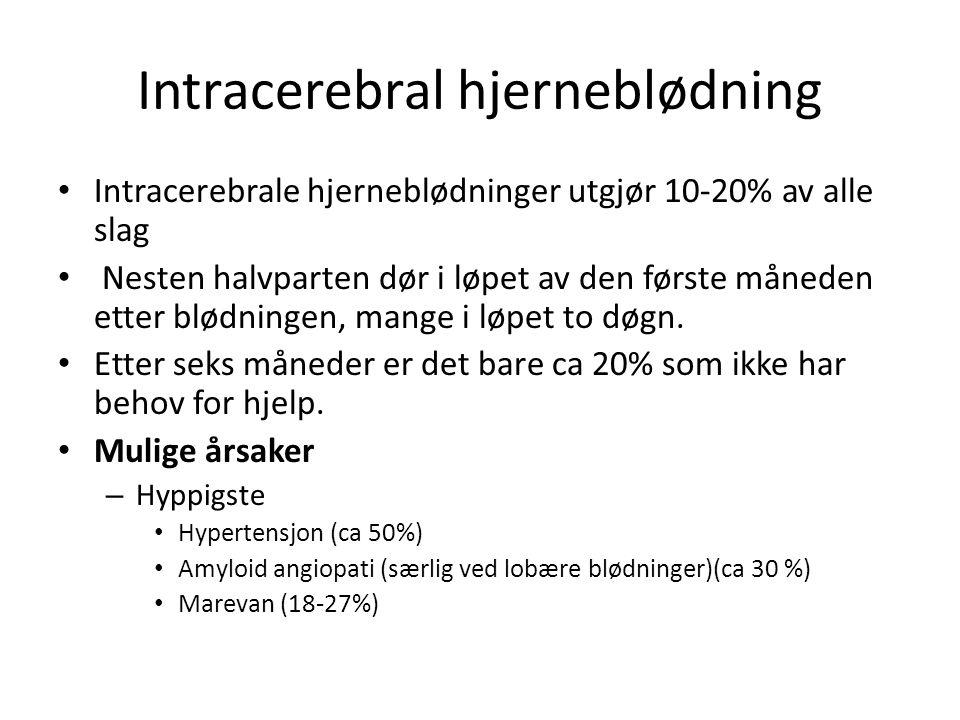 Intracerebral hjerneblødning Intracerebrale hjerneblødninger utgjør 10-20% av alle slag Nesten halvparten dør i løpet av den første måneden etter blød