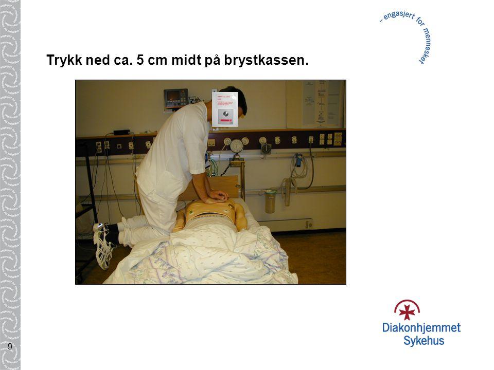 20 Etterbehandling p å Intensivavdeling: Pasienten sederes dersom han ikke v å kner etter 5-10min.