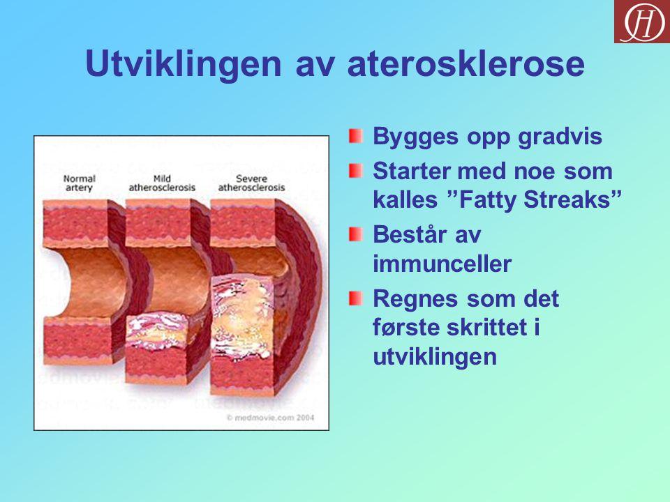"""Utviklingen av aterosklerose Bygges opp gradvis Starter med noe som kalles """"Fatty Streaks"""" Består av immunceller Regnes som det første skrittet i utvi"""
