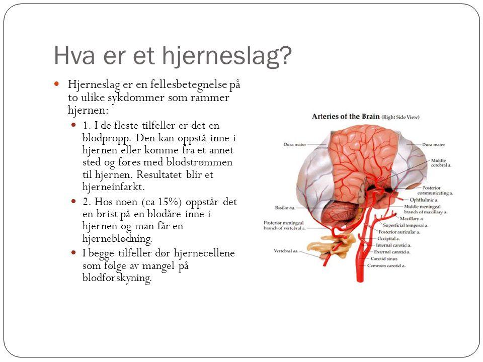 Hva er et hjerneslag? Hjerneslag er en fellesbetegnelse på to ulike sykdommer som rammer hjernen: 1. I de fleste tilfeller er det en blodpropp. Den ka
