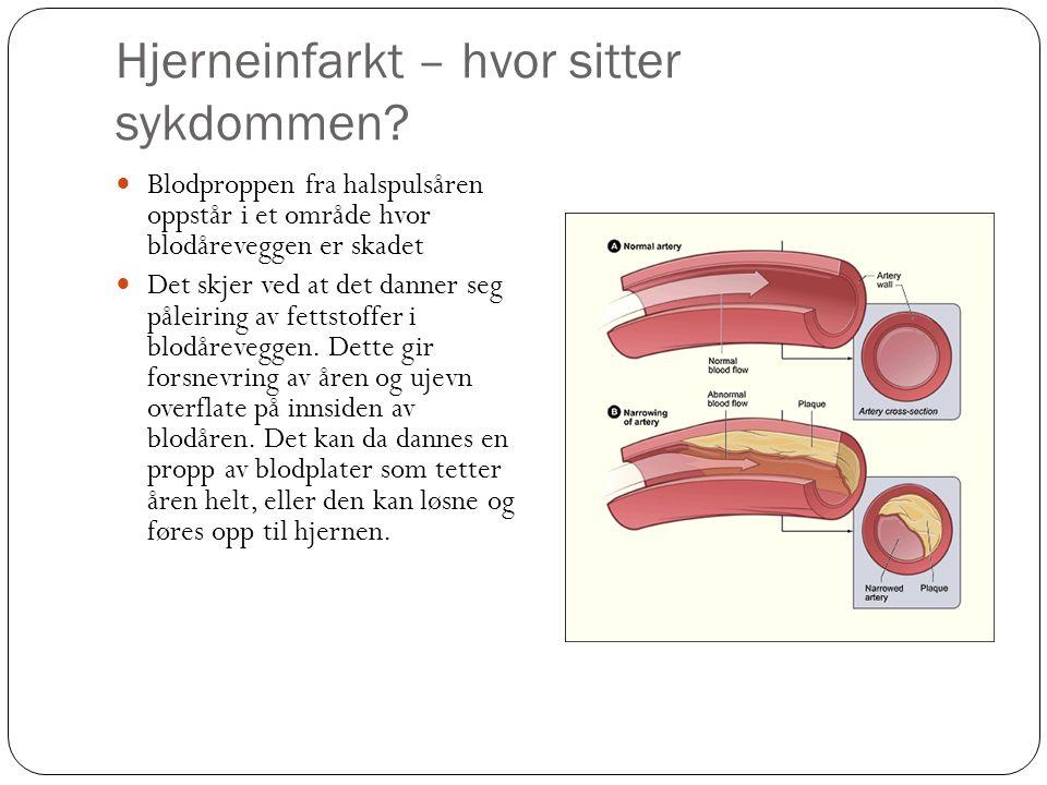Hjerneinfarkt – hvor sitter sykdommen? Blodproppen fra halspulsåren oppstår i et område hvor blodåreveggen er skadet Det skjer ved at det danner seg p