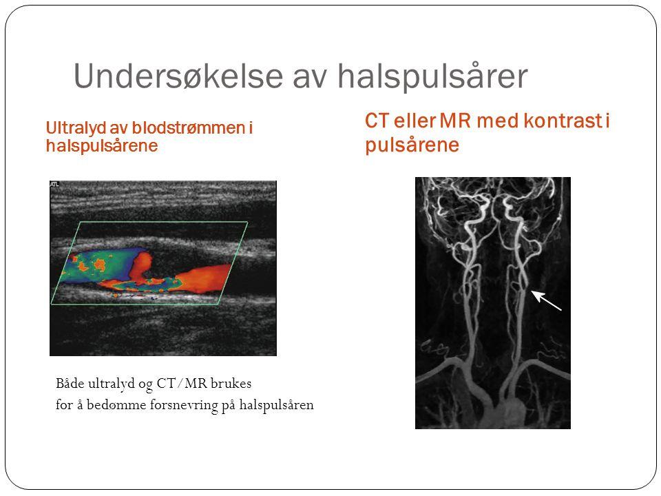 Undersøkelse av halspulsårer Ultralyd av blodstrømmen i halspulsårene CT eller MR med kontrast i pulsårene Både ultralyd og CT/MR brukes for å bedømme