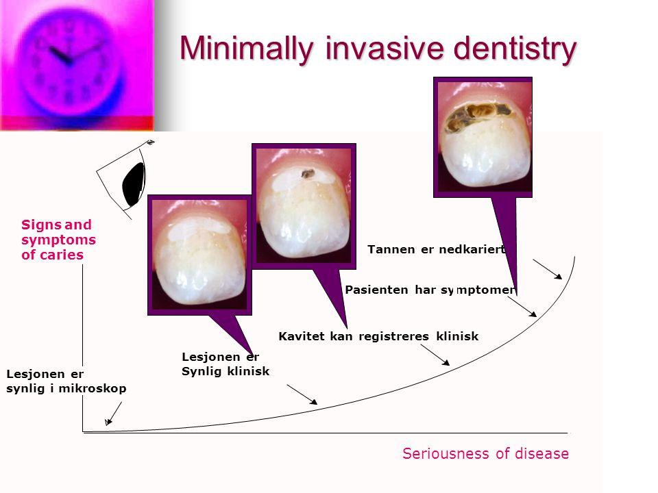 Signs and symptoms of caries Lesjonen er synlig i mikroskop Lesjonen er Synlig klinisk Tannen er nedkariert Pasienten har symptomer Kavitet kan registreres klinisk Seriousness of disease Minimally invasive dentistry