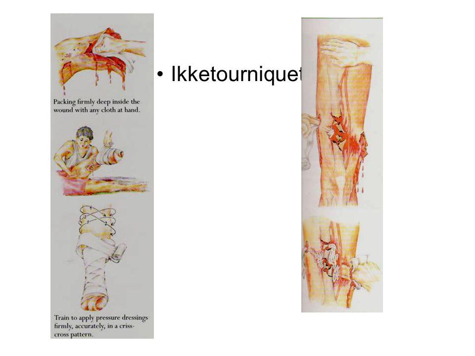 Traumeblødninger fra buk, bekken,brudd, thorax, rumpert aortaneurisme.