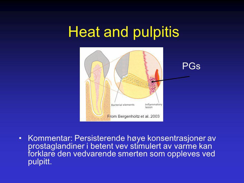 Heat and pulpitis Kommentar: Persisterende høye konsentrasjoner av prostaglandiner i betent vev stimulert av varme kan forklare den vedvarende smerten