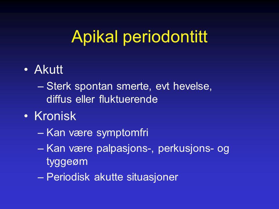 Apikal periodontitt Akutt –Sterk spontan smerte, evt hevelse, diffus eller fluktuerende Kronisk –Kan være symptomfri –Kan være palpasjons-, perkusjons